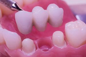 The Best Missing Teeth Options